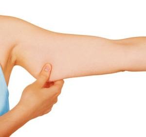 evita-la-flacides-de-los-brazos